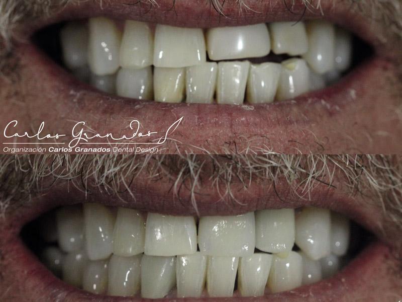 Odontologia estetica 2
