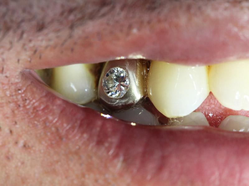 Odontologia estetica 3