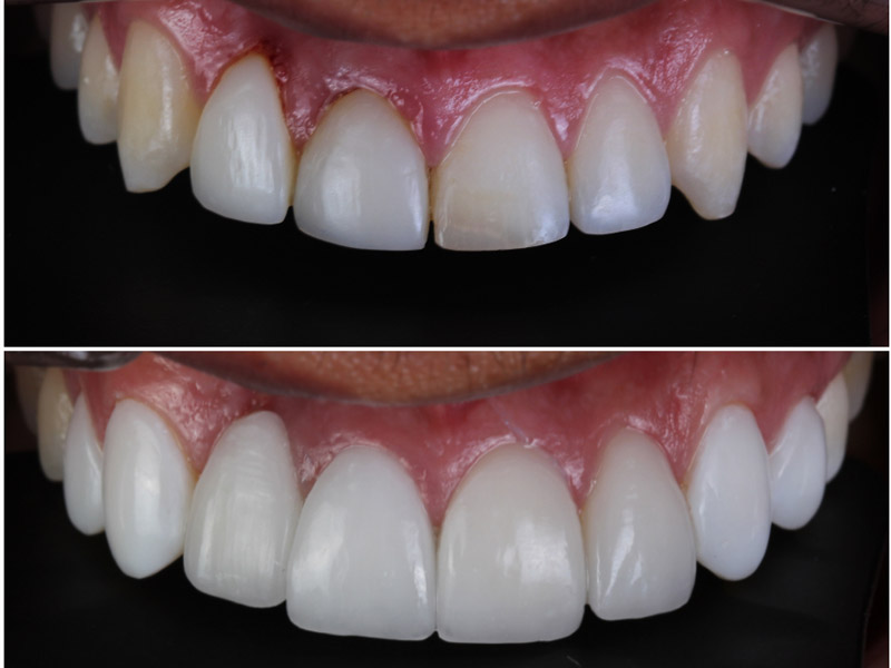 Odontologia estetica 4