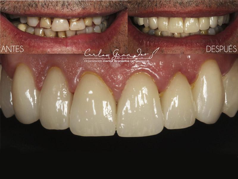Odontologia estetica 5