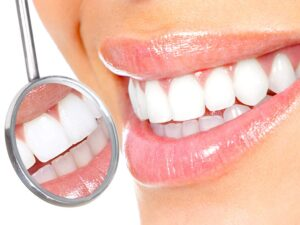 teeth-whitening-cleaning