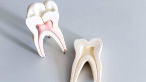68a375d336748a2239e2d7e04b40077e_how-to-take-care-of-your-teeth-1846-c-90