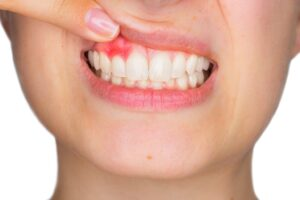 gum disease 1536x1025 1