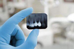 tratamento-odontologico-canal-3