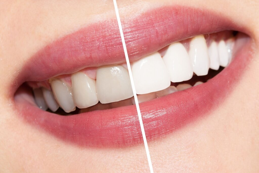 Blanqueamiento dental limpieza oral
