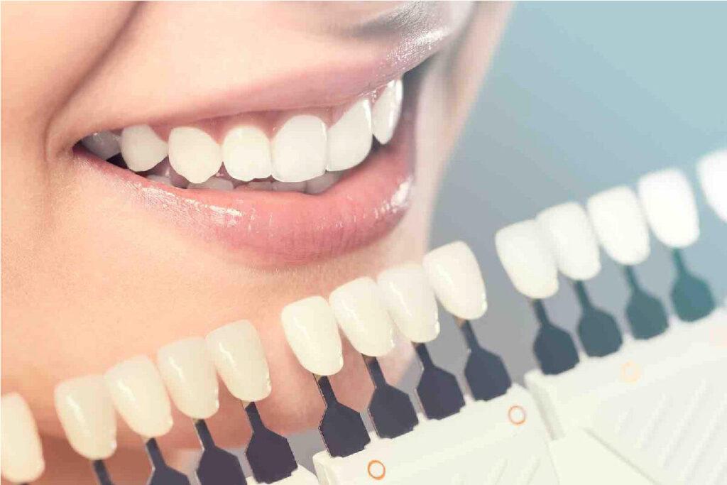 Mitos y verdades que debes conocer sobre las carillas dentales